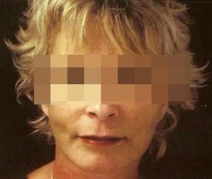 1261042103_bioplastia_facial_1_7