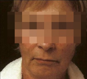 1261042129_bioplastia_facial_17