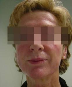 1261042143_bioplastia_facial_17__t256